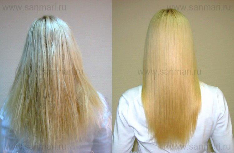 Выпадение волос и противозачаточные